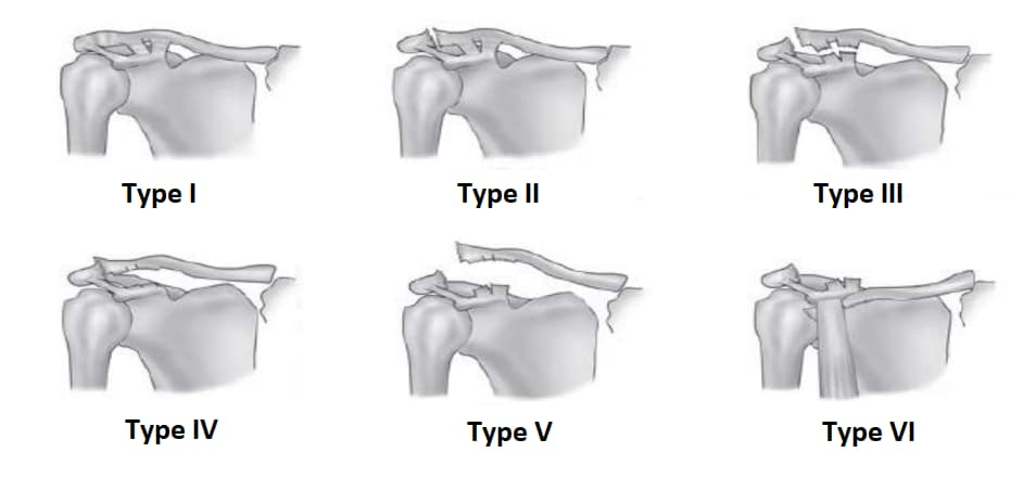 AC Joint Injury Grades